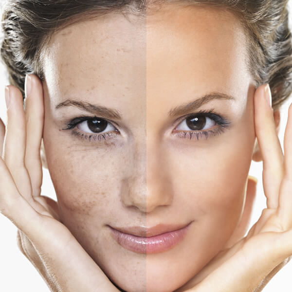 Nem múlik az arc pirossága? 4 tipp a rosacea kezeléséhez
